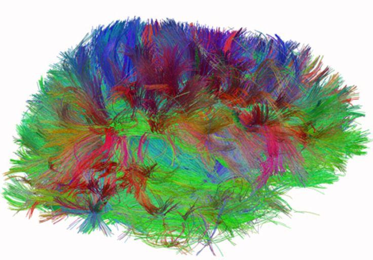 Czy nauka może wyjaśnić, jak postrzegamy piękno i sztukę? [BLOG]