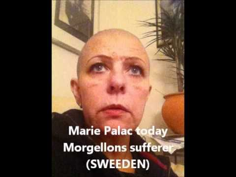 Morgellons Disease: The Big Lie, The Ultimate Cover-up