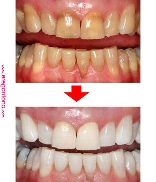 舌は 健康のバロメーターです 毎日 自分の舌を見てほしい そう話すのは 舌 や口臭など口腔内の変化から不調を見抜き なぜか全身の病気まで治る と評判の歯科医師 中城基雄先生 舌を見るだけで 脳卒中 歯 ホワイトニング 健康な歯 スキンケア