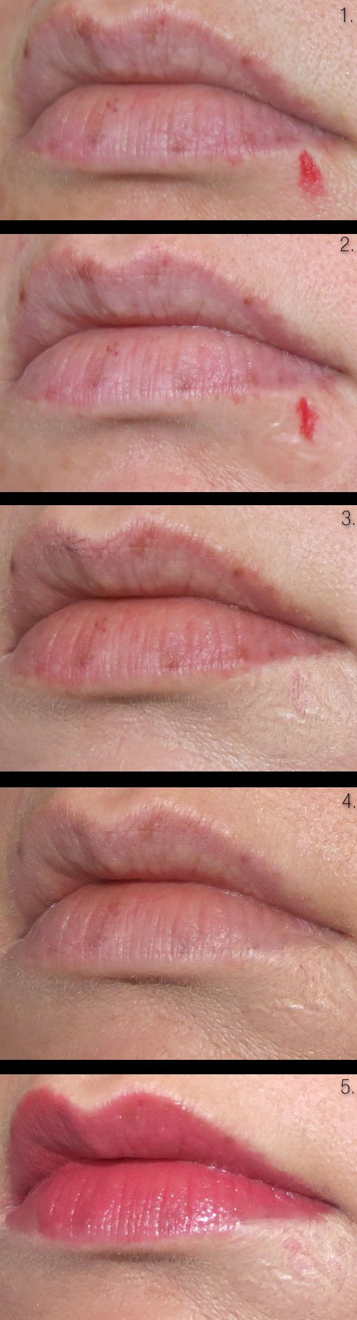 Easy Steps to Get Rid of Awful Cold Sores