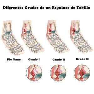 Qué es un esguince. Grados de un esguince de tobillo. #lesion #patologías #fisioterapia #rehabilitación