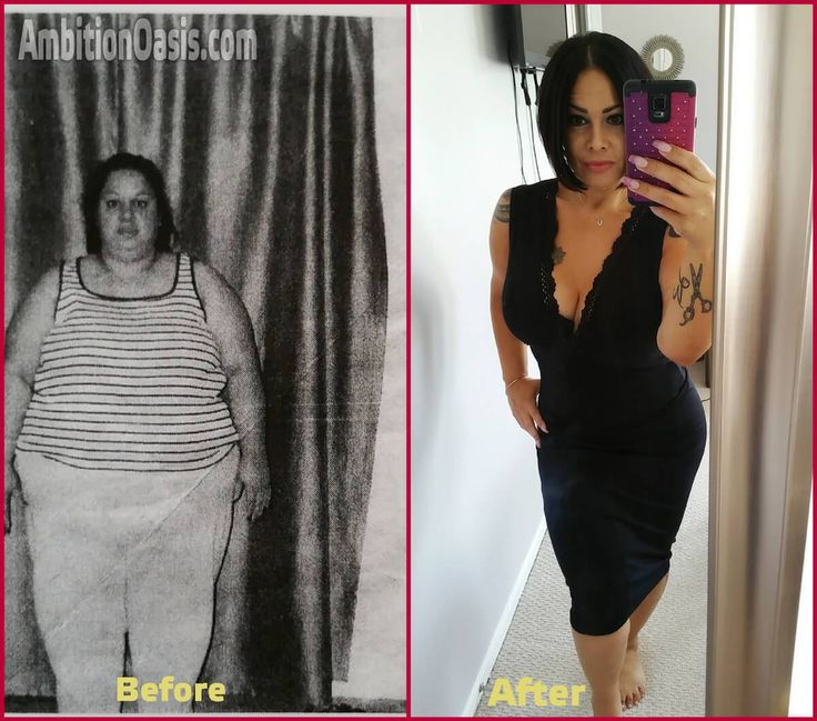 The inspiring story of a strong woman and how she lost 99 kg ( 219 pounds )