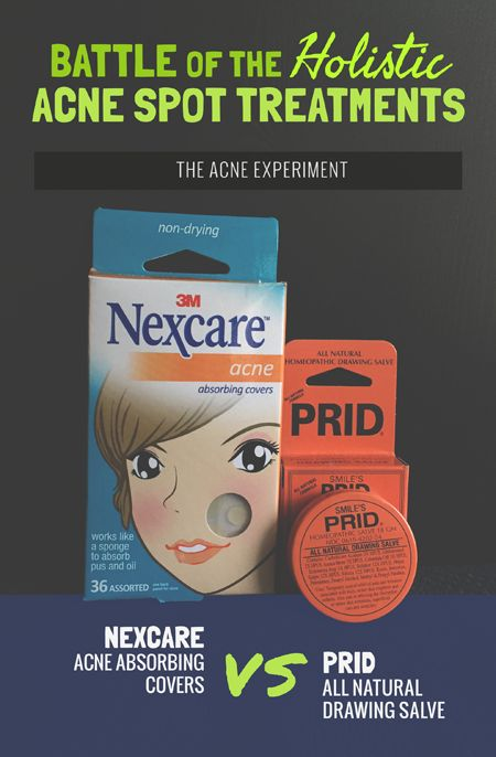 Battle of the Holistic Spot Treatments - Prid Drawing Salve vs Nexcare Acne Patches :: The Acne Experiment