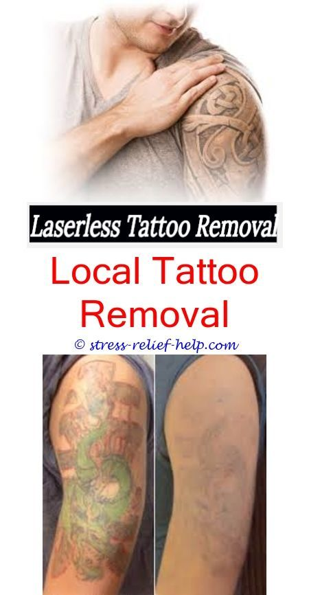 Is Tattoo Removal Worth Ittattoo Removal Tampahow To Remove A