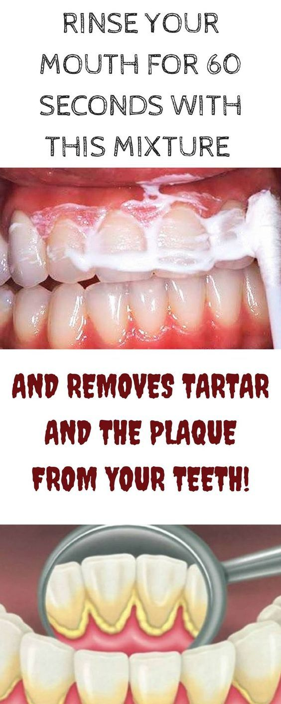 Colgate teeth whitening teeth whitening products pinterest teeth - Rinse Your Mouth For 60 Seconds With This Mixture And Removes Tartar And The Plaque From Homemade Teeth Whiteningskin