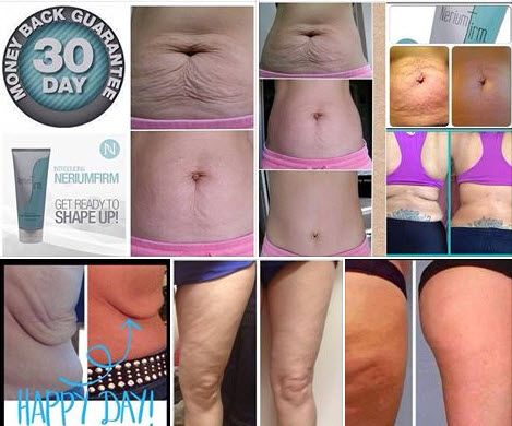 best skin tightening products for stomach