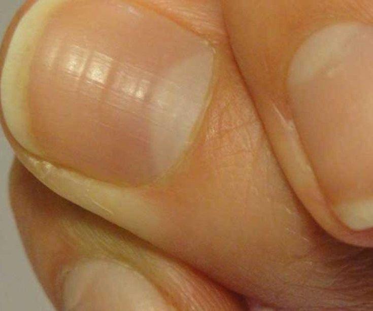 Aprenda a eliminar las grietas de las uñas  - Consejos - Belleza y Moda - Estilo de Vida | Teletica #consejosdevida
