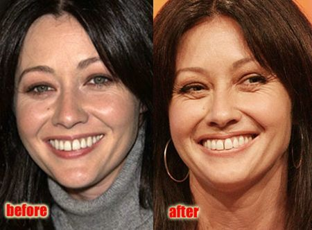 Shannen Doherty Plastic Surgery   Cosmetic Plastic Surgery