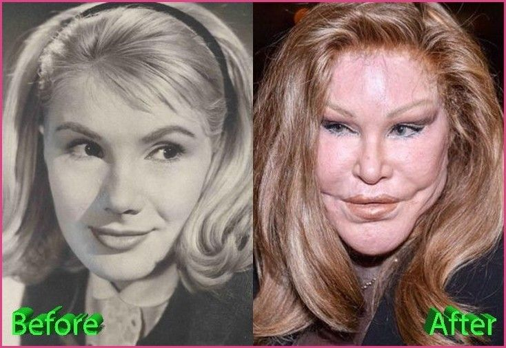 Catwoman Plastic Surgery From Bad To Worse Ch Ch Ch