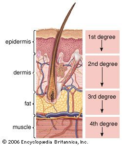 layers of skin - degree of burns