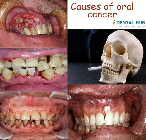 Treatment & Prognosis of Oral Cancer