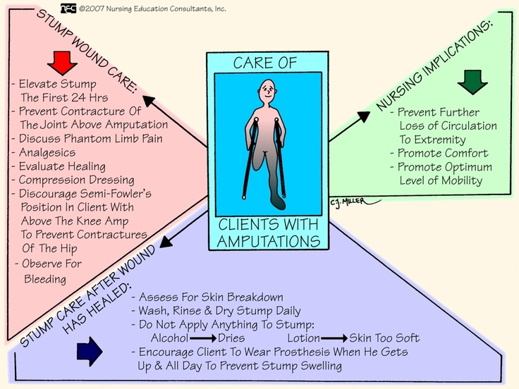 Amputations - Nursing Care