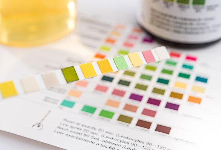 انتبه تغير لون البول قد يكون مؤشرا لأمراض خطيرة Ketones Alcohol Problem Urinal