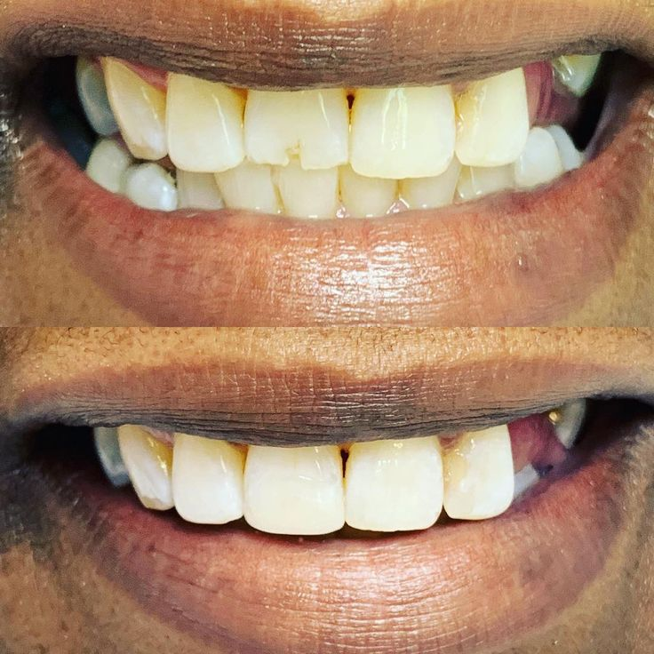 Fixing a chipped tooth with images emergency dentist