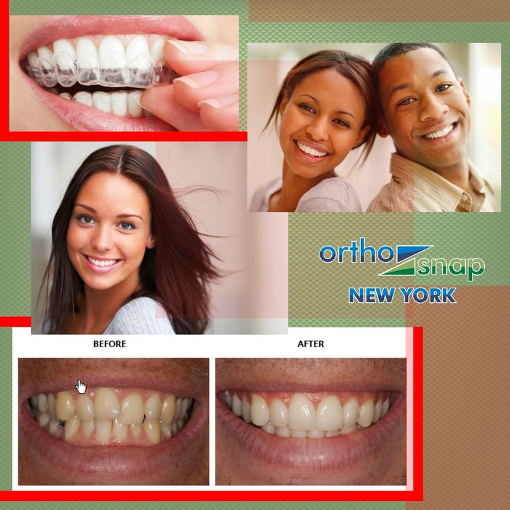 Alternatives to braces for adults