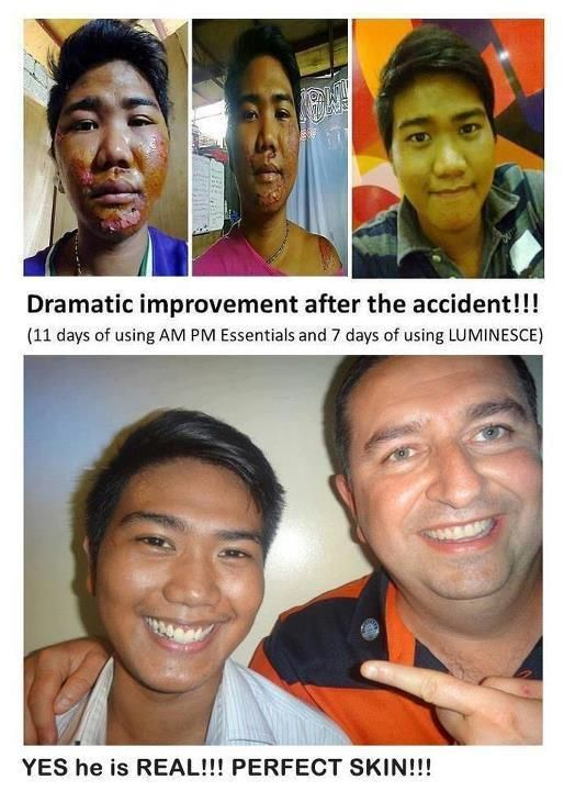 Amazing transformation after an accident back to perfect skin using the JEUNESSE products.