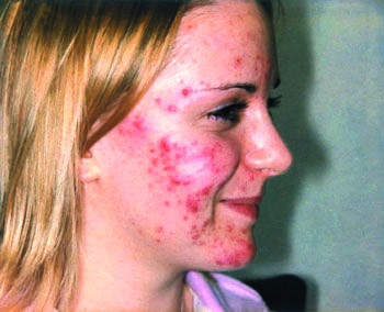 Acne Causes - Learn about Causes of Acne and make an informed decision! Visit WelcomeCure now!