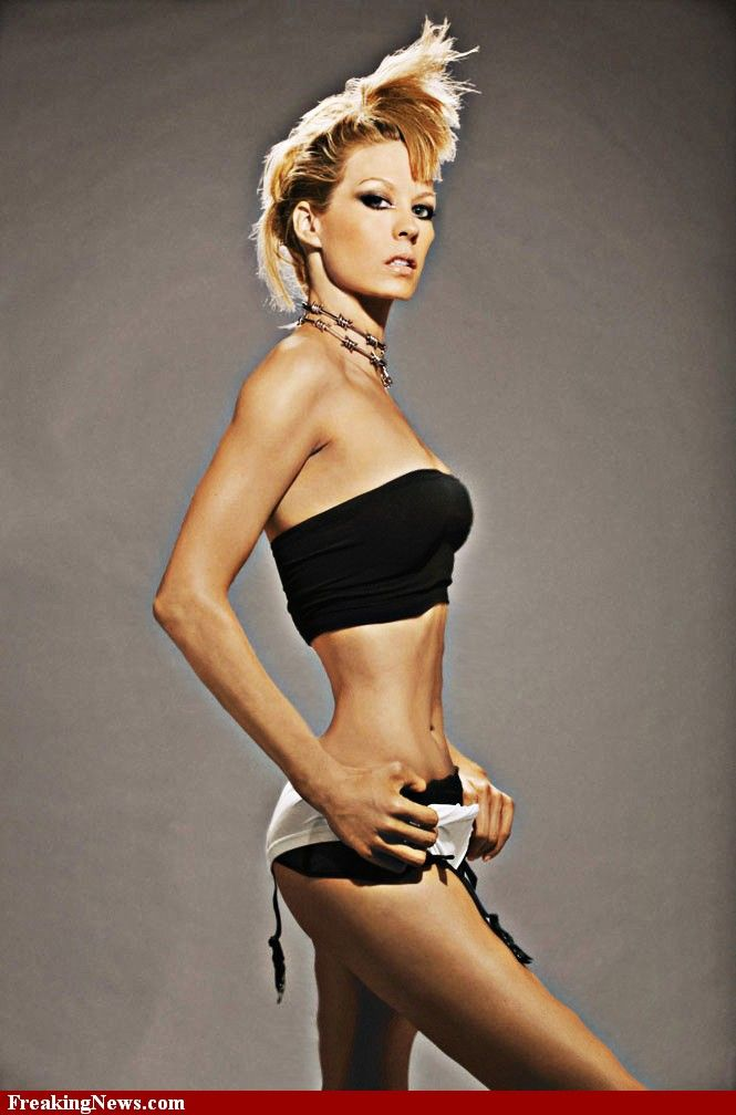 Anorexia Pictures Models | Anorexic Celebrities Pictures ...