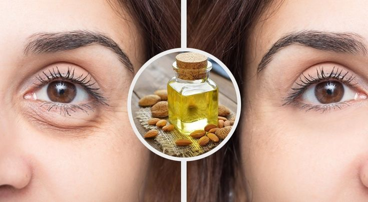 3 masks to relax the eyes and eliminate eye bags Important data that you must take into consideration if you wish to eliminate eye bags. Nobody can deny that eye bags are a big esthetic problem in addition to making you look tired and affect any