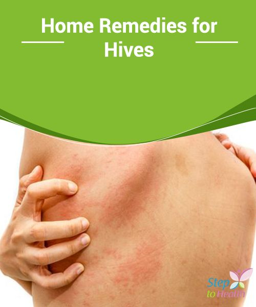 Home #Remedies for Hives   #Apple #cider vinegar is one of the most #effective remedies for relieving hives. We can apply it with a washcloth or add it to bath #water.