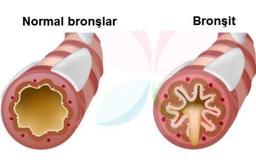 Astım kişinin solunum sistemini etkileyen kronik bir hastalıktır. Bu hastalık başta nefes almada ciddi zorluğa neden olan belirli tetikleyiciler nedeniyle ortaya çıkmaktadır. Astımın halen bir teda…