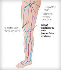 great saphenous vein - Google Search