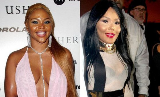 Celebs Who RUINED Their Faces
