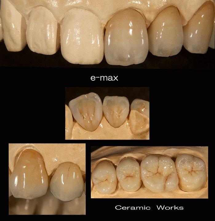 Изцялокерамични корони с идеална естетика, естествен цвят и напълно еквивалентни на наличните зъби форми.