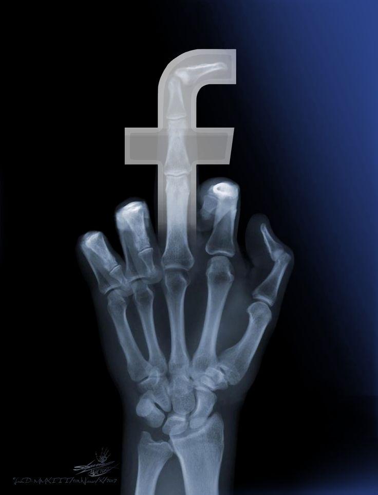 Like radiography