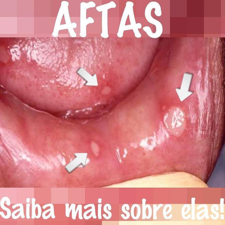 Aftas... O que são? Quais as causas? Como tratá-las ? Aftas também conhecidas como úlceras aftosas são lesões benignas que causam apenas desconforto. Surge em qualquer local da boca e caracterizam-se por ser lesões ovais esbranquiçadas e limpas (sem pus). Podem ser únicas ou múltiplas pequenas ou grandes. Duram em média de 2 a 3 semanas. Causas: Estresse emocional; Traumas locais (ex: mordidas acidentais próteses mal adaptadas); Baixa imunidade (causada por alguma doença específica ou u...