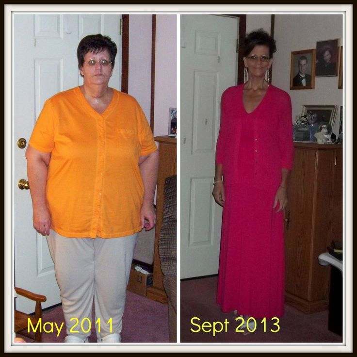 Weight loss while taking sertraline