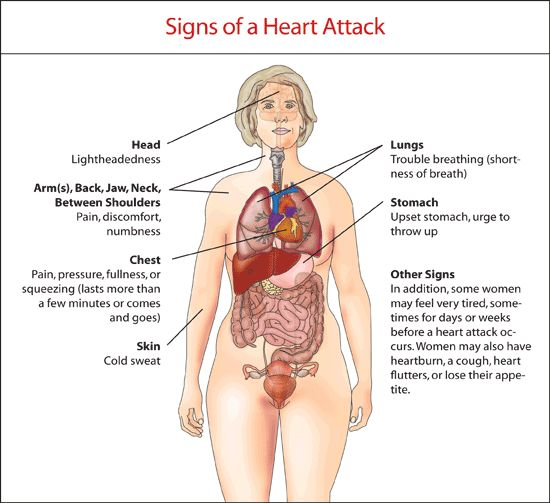7 Signs of Heart Attack In Women - PositiveMed -Posted on January 19, 2014 by NIMA SHEI
