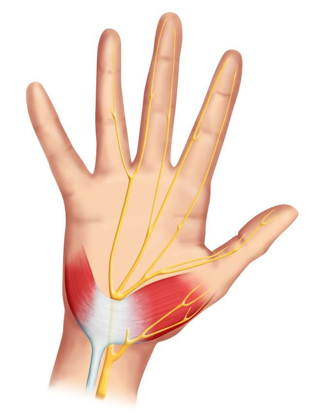 17 best Carpal Tunnel Syndrome images on Pinterest | Carpal tunnel ...