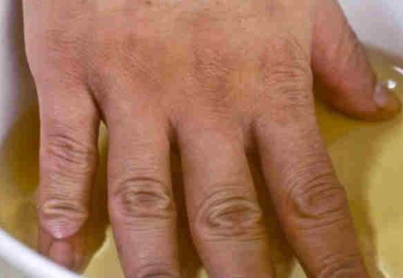 Heti két alkalommal ecetbe áztatta ujjait! Ha megtudod, miért, te is kipróbálod!
