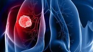 LungCancerRendering