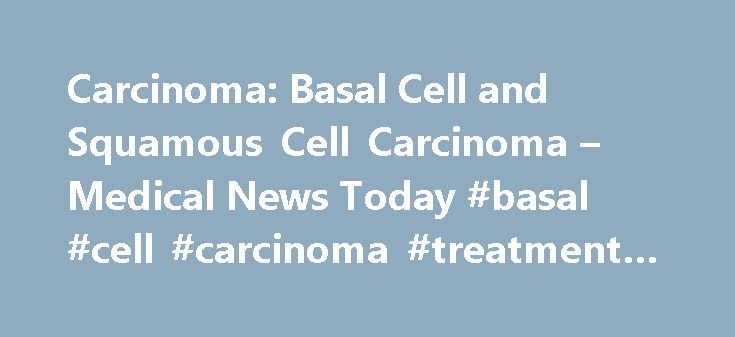 Carcinoma: Basal Cell and Squamous Cell Carcinoma – Medical News Today #basal #cell #carcinoma #treatment #options http://south-africa.nef2.com/carcinoma-basal-cell-and-squamous-cell-carcinoma-medical-news-today-basal-cell-carcinoma-treatment-options/  # Carcinoma: Basal Cell and Squamous Cell Carcinoma Bumps on the skin: Pictures, causes, and treatments Learn all about common types of bumps found on the skin, from skin tags to melanomas, including their causes, treatment options, and when…