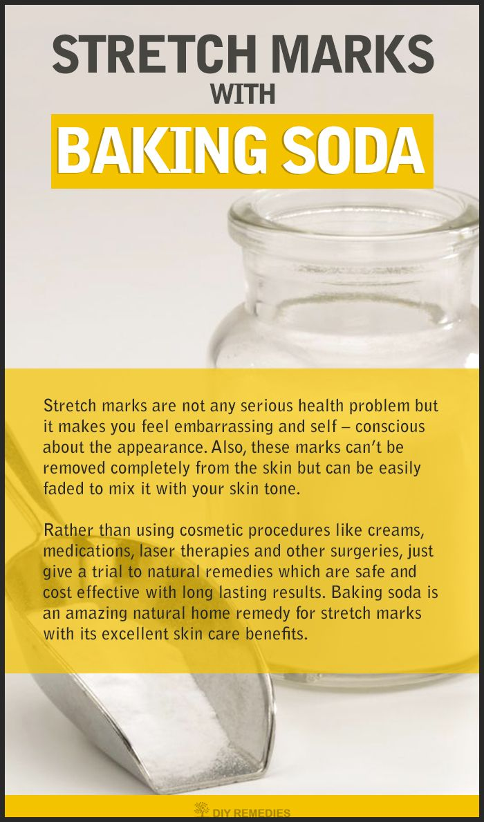 Get Rid of Stretch Marks with Baking Soda Does Baking Soda work on Stretch Marks? Baking soda not only used for cooking purpose but it has many excellent properties, which help to clear many health and beauty problems. Here we are going to know how it w