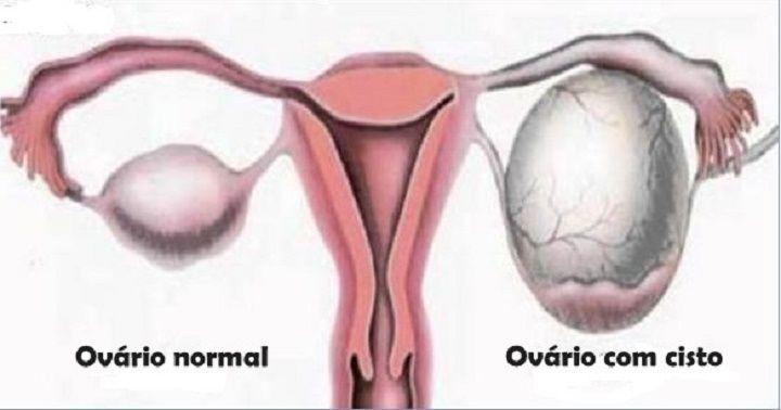 Estes são os sinais de cisto no ovário que toda mulher precisa saber (e como tratar o problema) | Cura pela Natureza