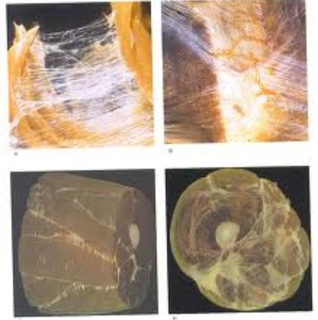 What is Fascia? #Fascia is the head to toe, arm to arm, inside-out connective tissue. It divides our muscles and penetrates them like the internal skin of an orange. It also surrounds virtually every structure of the human body.