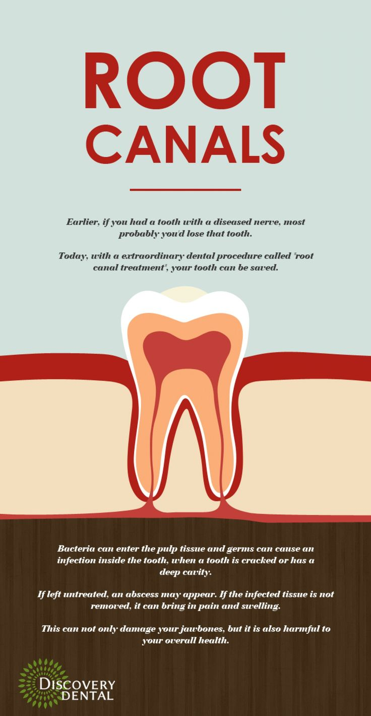 Effective Root Canal treatment in Issaquah http//tmiky