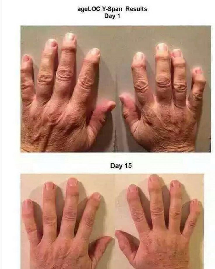 ageLOC Yspan testimonial  WA/LINE: +62-857-17877-200 BB: 578F944F #nuskin #nuskinjakarta #nuskinindonesia #nuskinmurah #ageloc #ageloctr90 #healthyslimming #dietsehat #supplements #vitamin #pharmanex #ageloch_tech #galvanicbody #galvanicbodyspa #galvanicspa #antiaging #olshopindonesia #olshopbandung #olshopjakarta #olshopsurabaya #olshoptangerang #olshopbekasi #olshopjkt