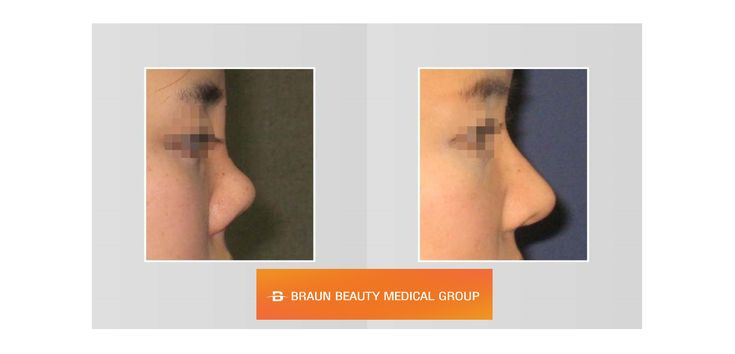Revision rhinoplasty for the upturned nose