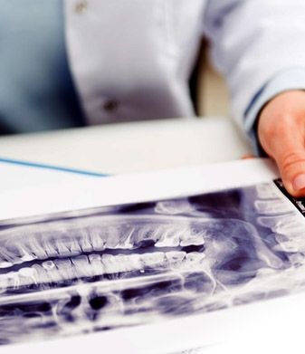 In very specific cases, when indicated, regenerative procedures might be used to aid in regenerating or repairing lost bone and lost periodontal structure. For more information visit our website or call us for a free appointment at 03 98171860 #MelbournePeriocare #DrNupurKataria #Periodontics #NoReferralRequired