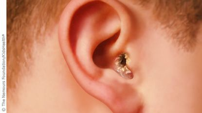 Pool season and swimming are here and so the possibility of getting swimmer 39 s ear otitis for What causes ear infections from swimming pools