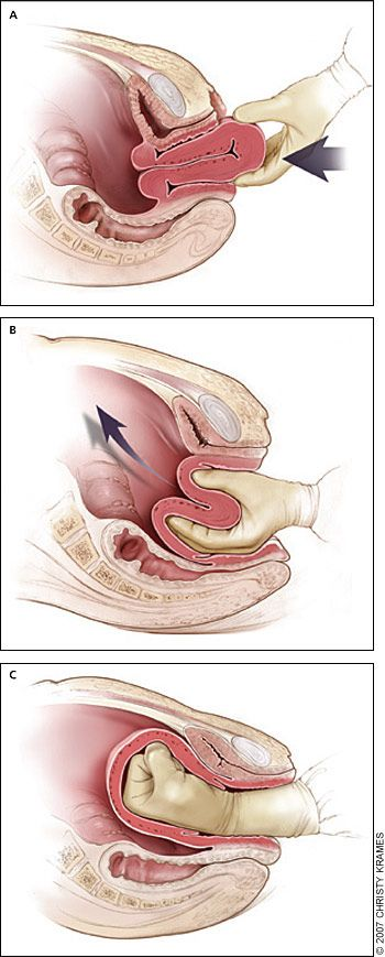Postpartum hemorrhage: Reduction of uterine inversion (Johnson method). (A) The protruding fundus is grasped with fingers directed toward the posterior fornix. (B, C) The uterus is returned to position by pushing it through the pelvis and into the abdomen with steady pressure towards the umbilicus.