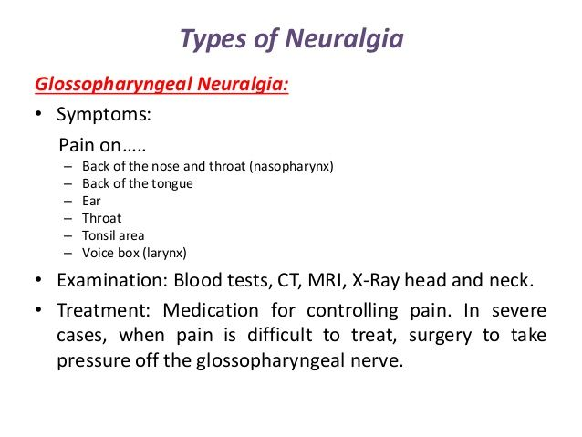 Image result for glossopharyngeal neuralgia