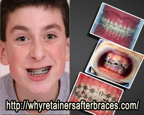 Why Retainers after Braces  #Retainers   #Braces