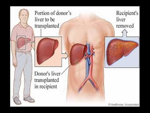 إلتهاب الكبد فيروس سي.