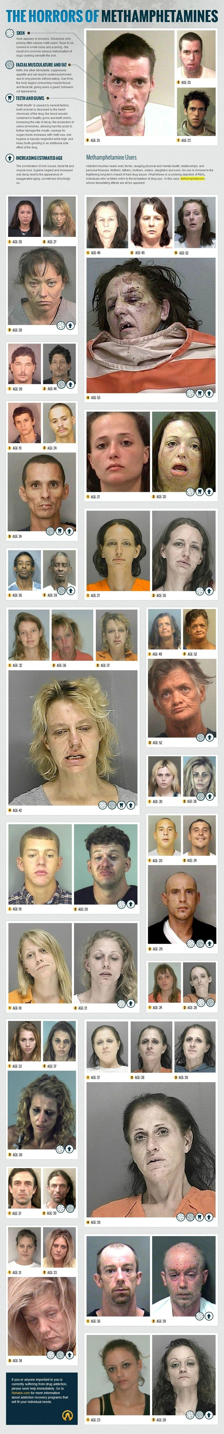 Before & After Meth   pretty scary-will show to my girls one day to show them drugs suck!
