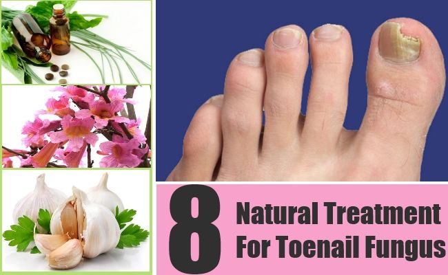how to get rid of fungal infection on toenails